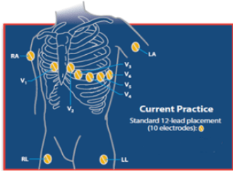 note: 15-lead ecg is for u s  and 22-lead ecg is for ce marking countries,  australia and taiwan