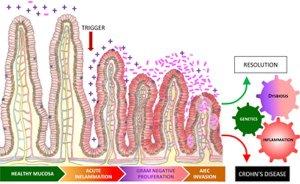 Vegan Magazine – Crohn's disease driven by inflammation