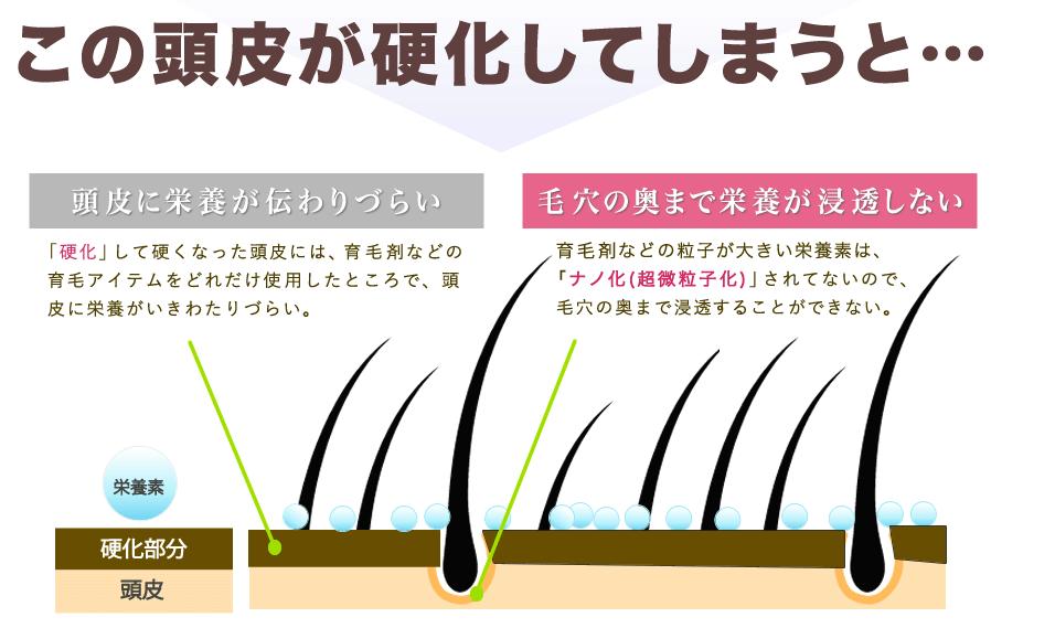 ベルタ育毛剤