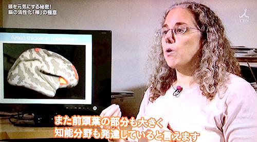 ハーバード大学のサラ・レイザー博士