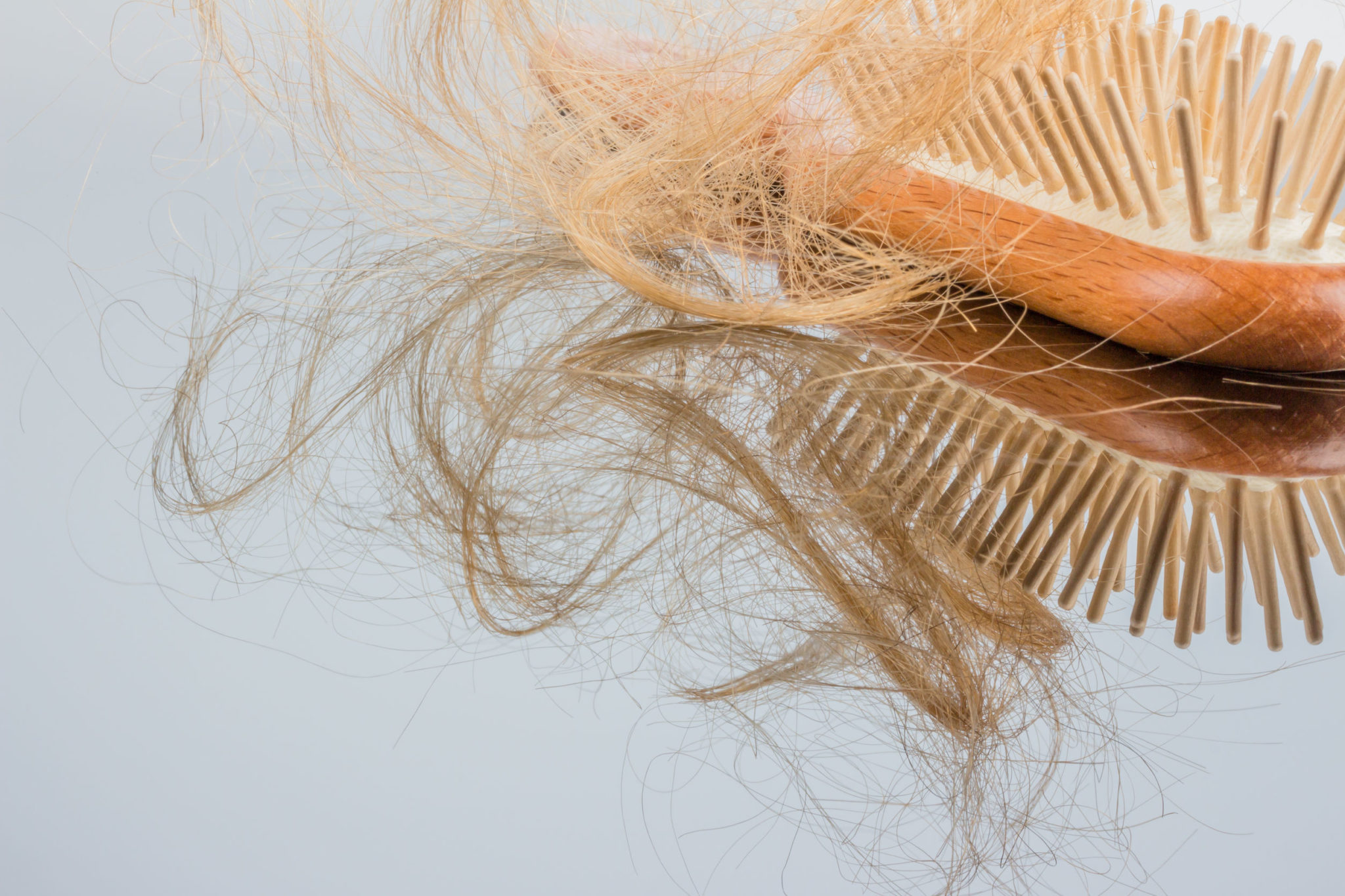 What Are the Risk Factors for Hair Loss