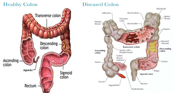 colon-healthy vs diseased