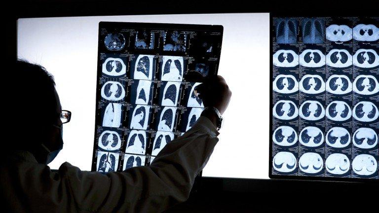 Pour accélérer la lutte contre le cancer, IBM met à disposition de la Science trois projet IA – SciencePost