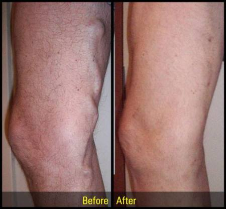 vein before and after photos