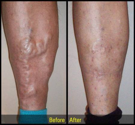 vein treatment before and after