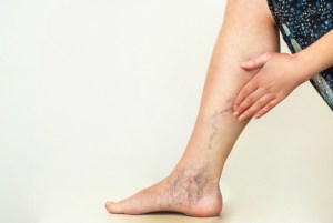 Varicose veins on woman's legs