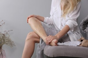 woman with varicose veins on legs