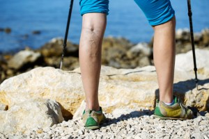 woman with varicose veins hiking in summertime