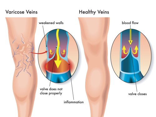 causes of varicose veins