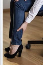 varicose vein legs