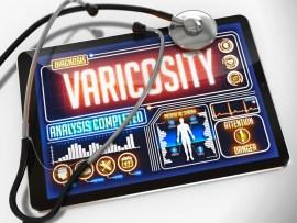 varicose vein symptoms