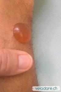 Willi ist allergisch gegen Chitras. Es bilden sich überall Blasen, die grösste ist so gross wie mein Daumen