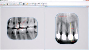 Velopex Apixia Phosphor Plate Dental Digital X-Ray System - Software Screenshot
