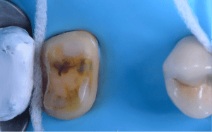 Cavity preparation after abrasion (53μ aluminium oxide) on lower first molar, post root canal therapy