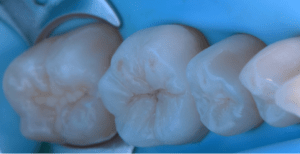 Occlusal view showing biomimetic integration.