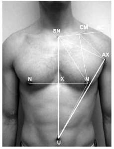 stw nipple diagram