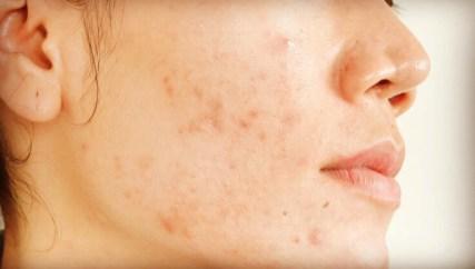 Ganoderma de Gano Excel para tratar el Acné y manchas en la piel
