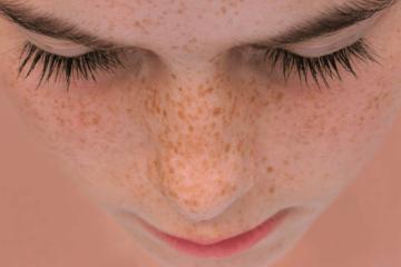 manchas-y-cuidado-piel seytu