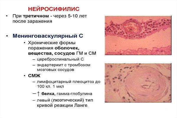 Szifilis az oftalmológiában, Orvosi szavak értelmezése – Sz
