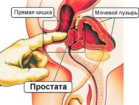 Eskuzan with prostatitis that is part of the drug...