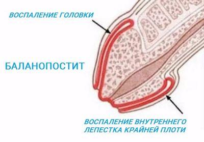 płukanie penisa furacilin