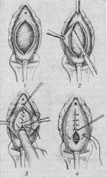 Эндопротез сетка при опущении матки