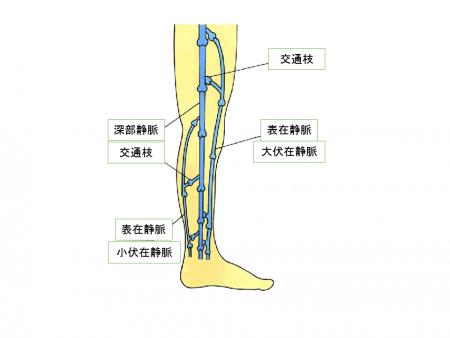下肢静脈瘤の原因となる静脈解剖図