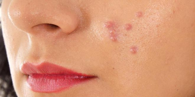 Treatment of pimples cure with perfectly