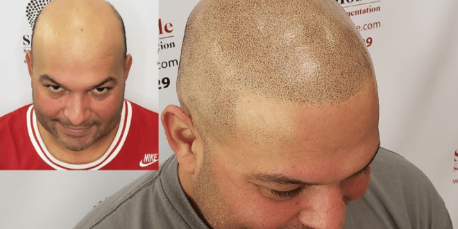 What is Scalp Micropigmentation (SMP)?