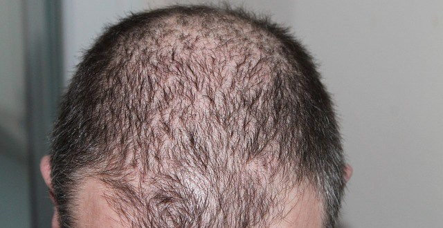 Causes Of Male Hair Loss