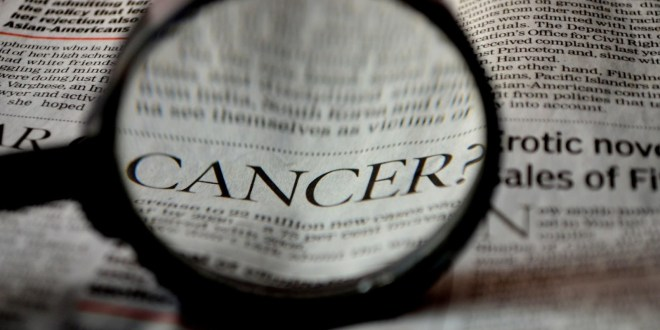 What Are the Most Common Forms of Cancer? A Detailed Guide