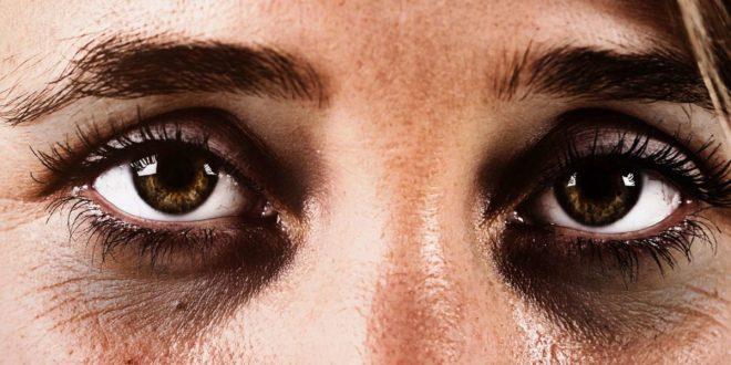 <strong>Dark circles under the eyes</strong>