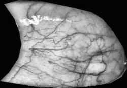 Vascular make up of an eye on EyeVerify