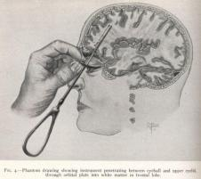 Dr. Freeman's lobotomy