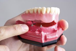 Implant supported dentures at Vernon Denture Clinic Vernon BC