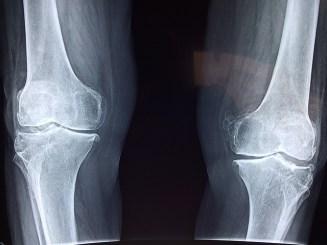 knee-2253047_640