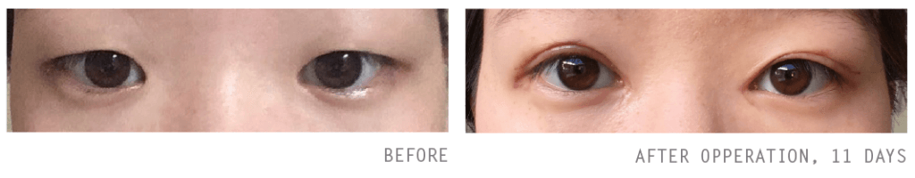 Double Eyelid Surgery | Beauty Feature | Verve Magazine