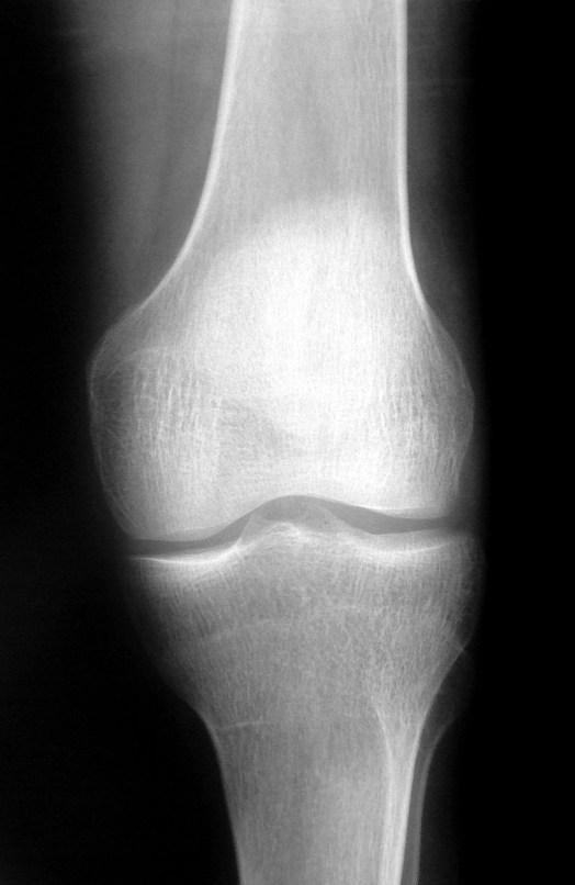 knee-x-ray-1-1562064
