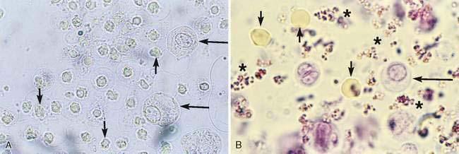 Cat Urine Wbc Sediment Stain