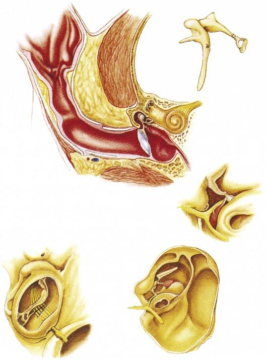 Anatomy of the Ear in Health and Disease   Veterian Key