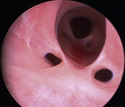 Cystoscopy Veterian Key