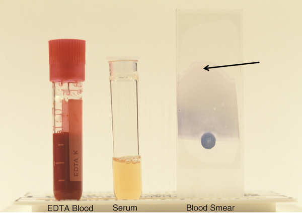 Photo of EDTA Blood and serum samples in test tubes and a blood smear sample.