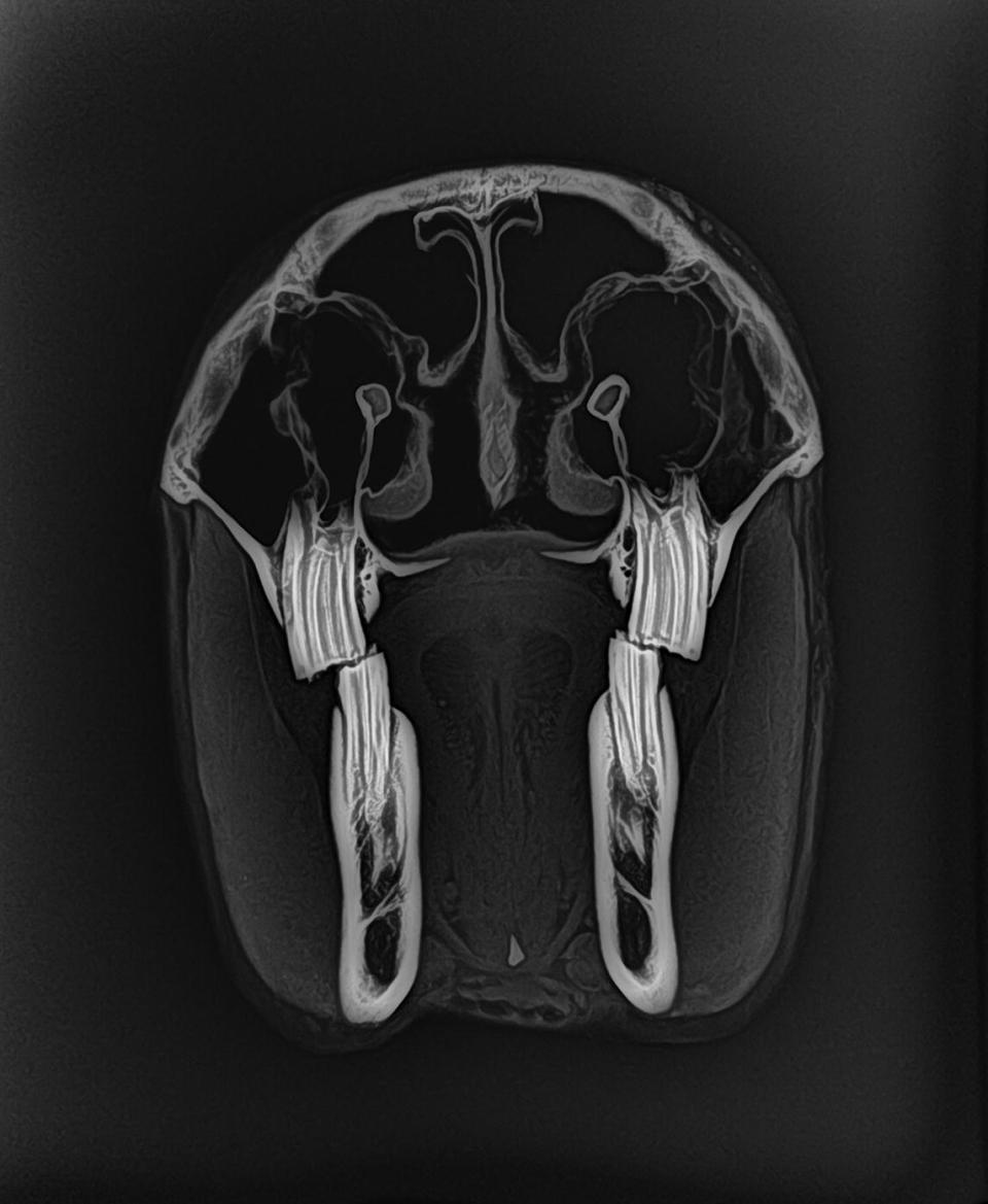 CT scan image of the left side of the equine head.