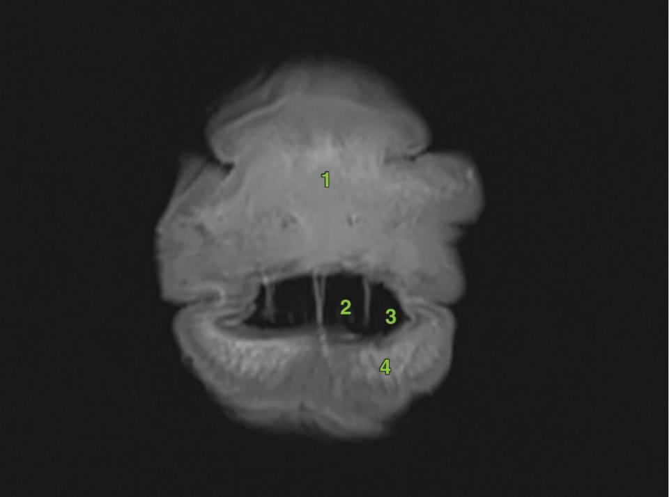 MRI image of the transverse section of the equine head.