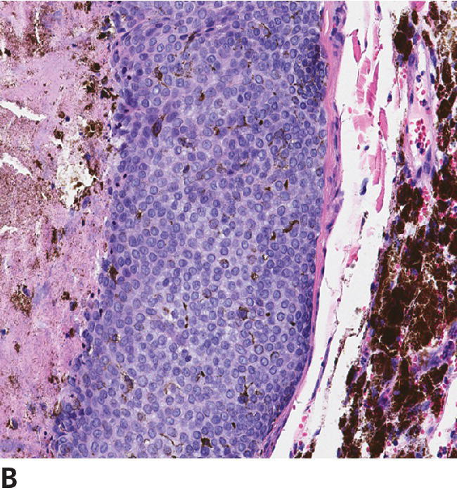 Micrograph of a feline basal cell tumor with multilobulated mass, displaying no nuclear or cellular pleomorphism in the neoplastic cells.
