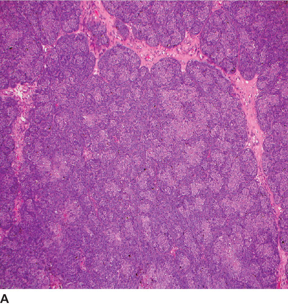 Low-magnification micrograph of canine basosquamous carcinoma displaying basaloid peripheral neoplastic cells with central squamous differentiation.