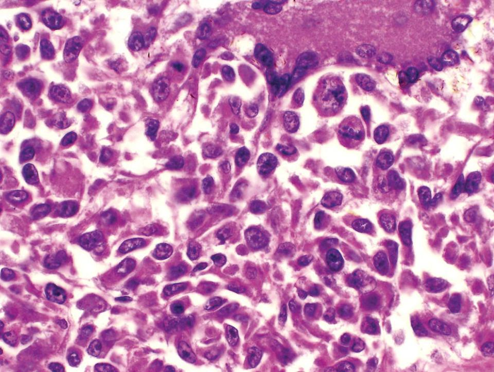 Micrograph of angiocentric B-cell lymphoma in a dog. The round to oval and undifferentiated nuclei of most of the mononuclear cells are evident.