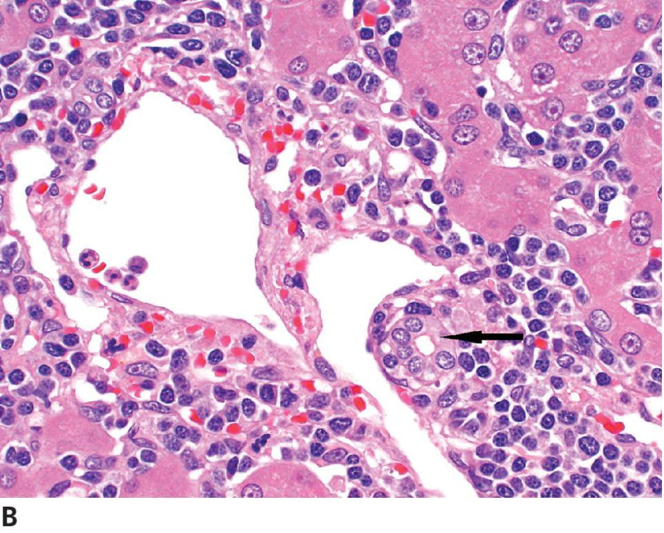 Micrograph of hepatosplenic T-cell lymphoma in a dog. In the portal area, bile duct (arrow), the sinusoids are dilated by neoplastic lymphocytes that are intermediate to large cell size.