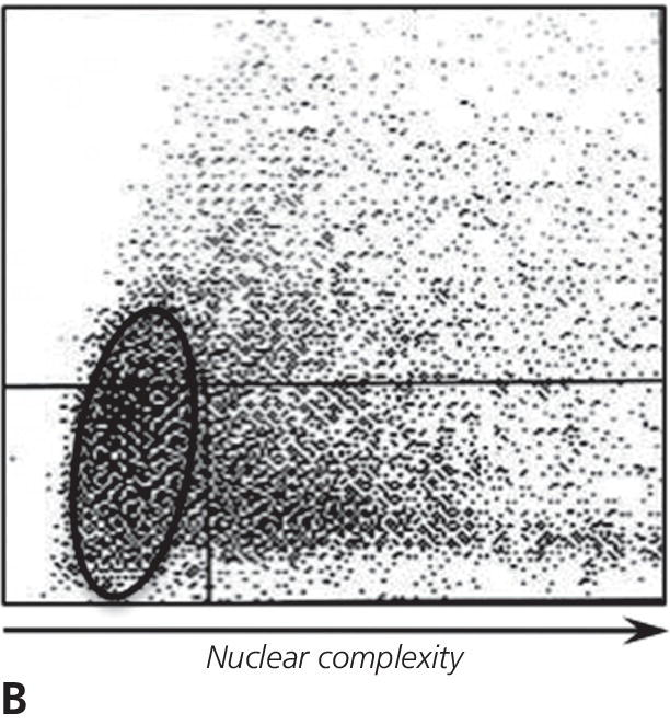 Schematic graph of cytogram of nuclear complexity versus size identifying increased proportion of large round nuclei (circled) consistent with blast cells and many non-lyzed large cells.