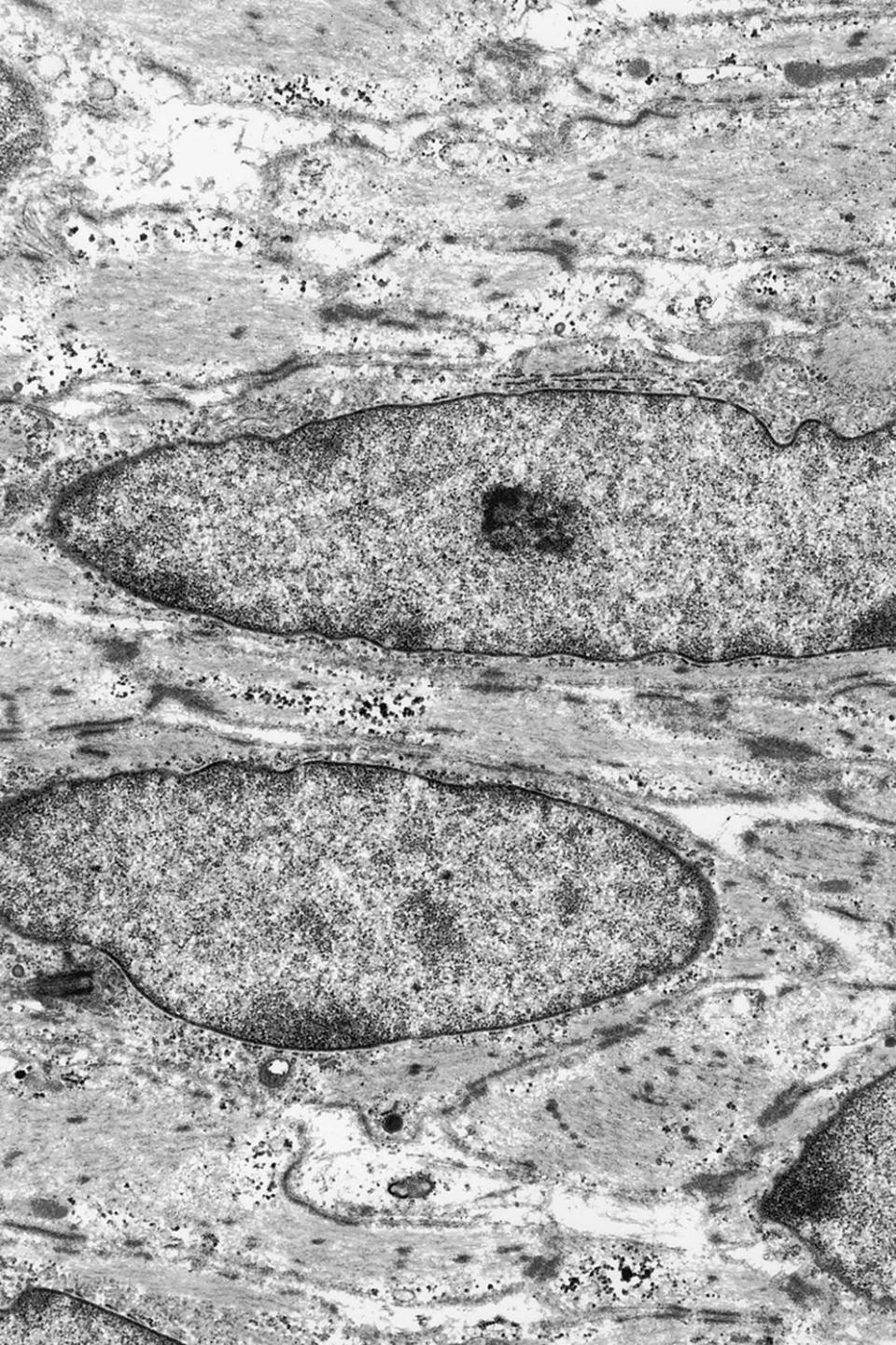 Micrograph of the ultrastructural features of smooth muscle differentiation in gastrointestinal stromal tumor of horse with cells exhibiting bundles of cytoplasmic filaments associated with dense bodies.